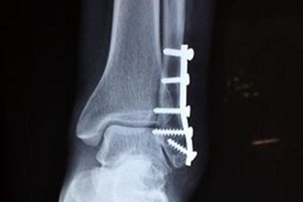 Zlomená noha u dětí