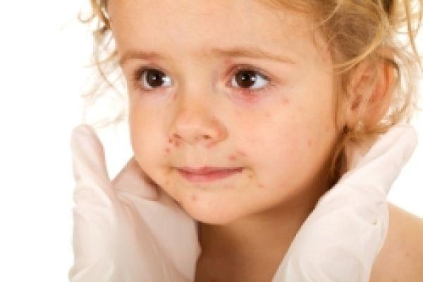 Plané neštovice - příznaky a léčba